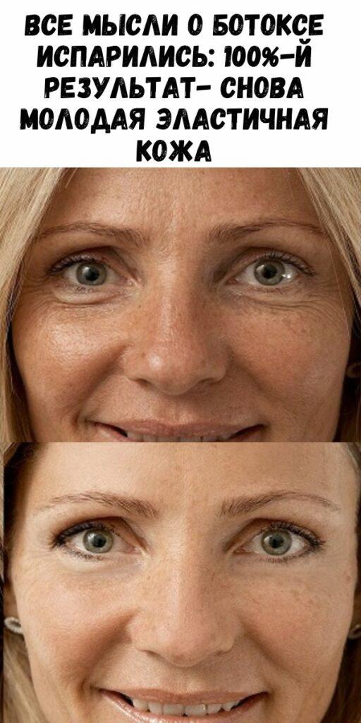 Все мысли о ботоксе испарились: 100%-й результат- снова молодая эластичная кожа