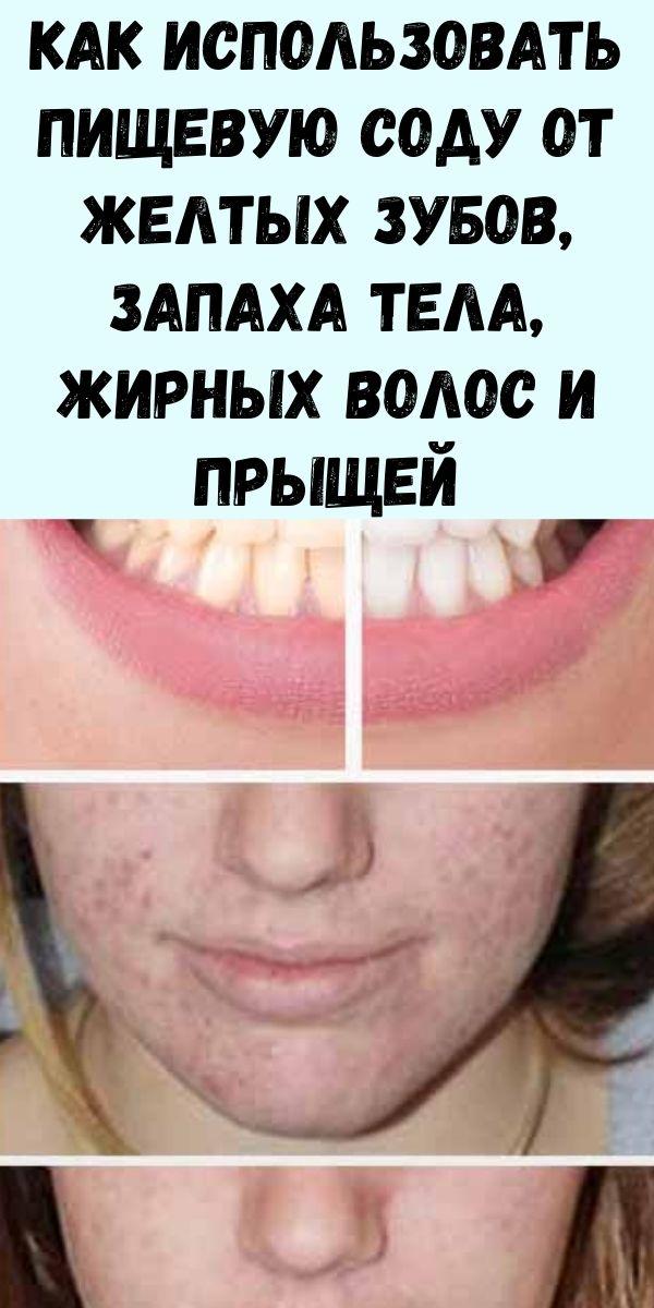 Как использовать пищевую соду от желтых зубов, запаха тела, жирных волос и прыщей