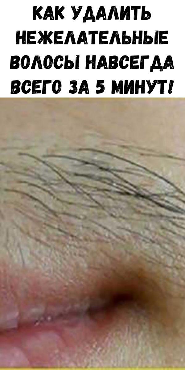 Как удалить нежелательные волосы навсегда всего за 5 минут!