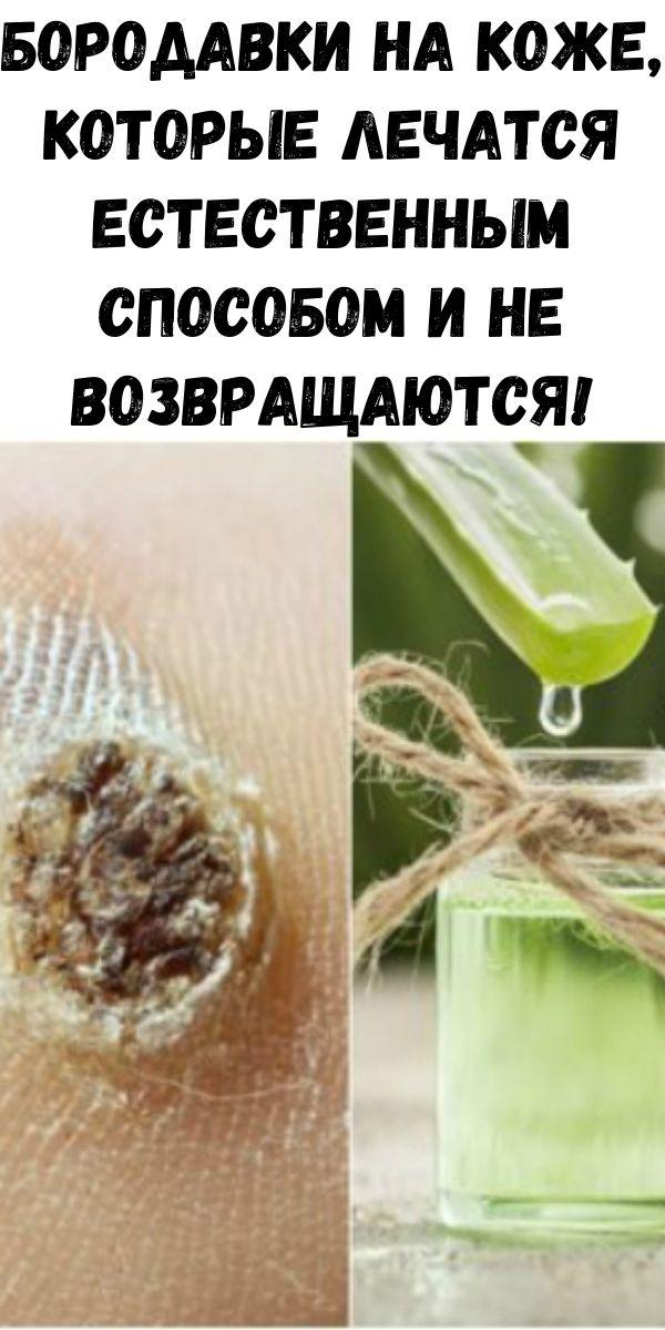 Бородавки на коже, которые лечатся естественным способом и не возвращаются! Уже проверено!