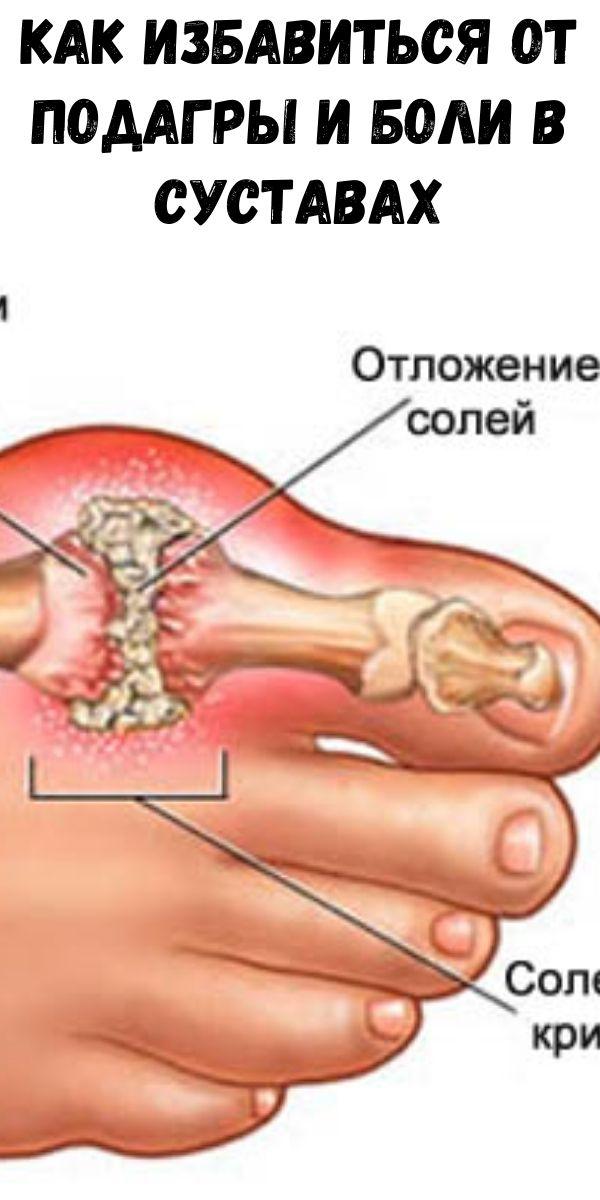 Как избавиться от подагры и боли в суставах (мочевая кислота и кристаллы)