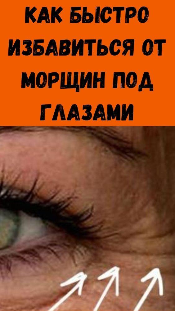 Как быстро избавиться от морщин под глазами